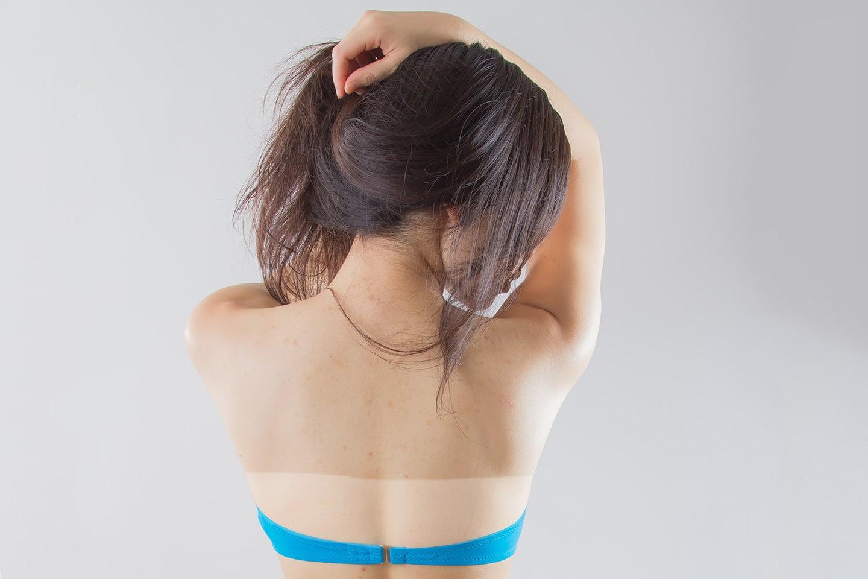 woman got sunburned on her back